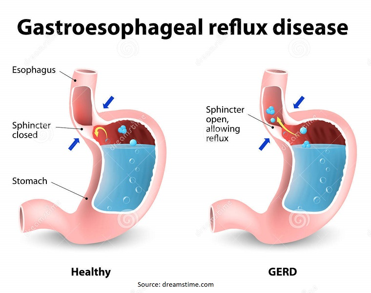Follow These Simple Tips to Prevent GERD
